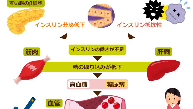 糖尿病と筋肉の関係